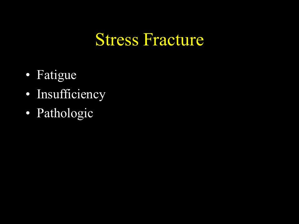 Stress Fracture Fatigue Insufficiency Pathologic