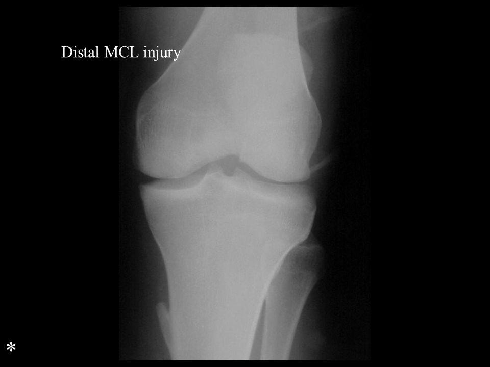 Distal MCL injury *