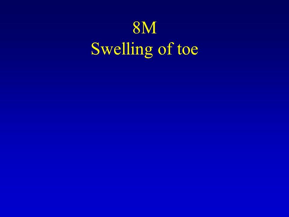 8M Swelling of toe