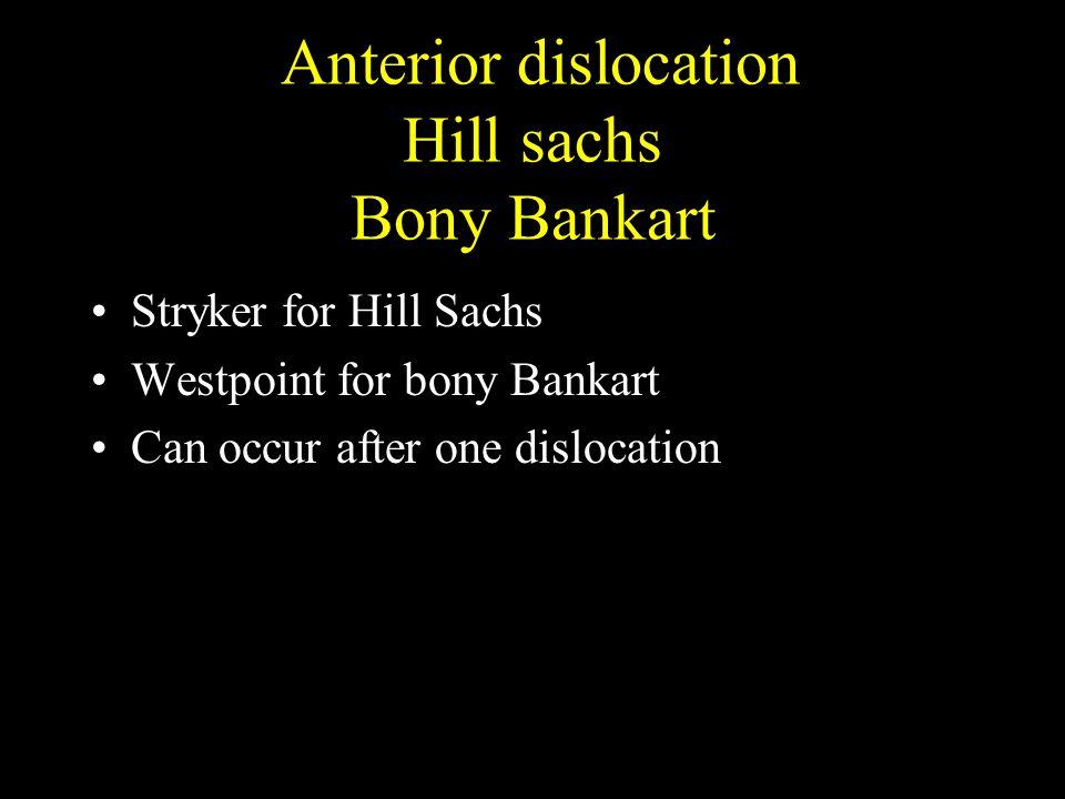 Anterior dislocation Hill sachs Bony Bankart