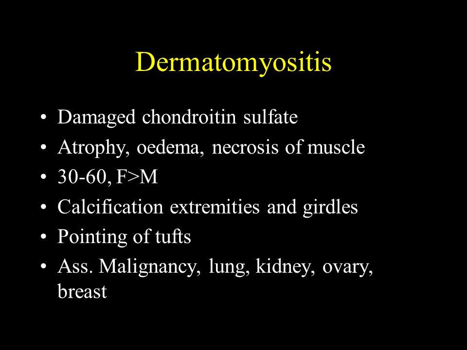 Dermatomyositis Damaged chondroitin sulfate