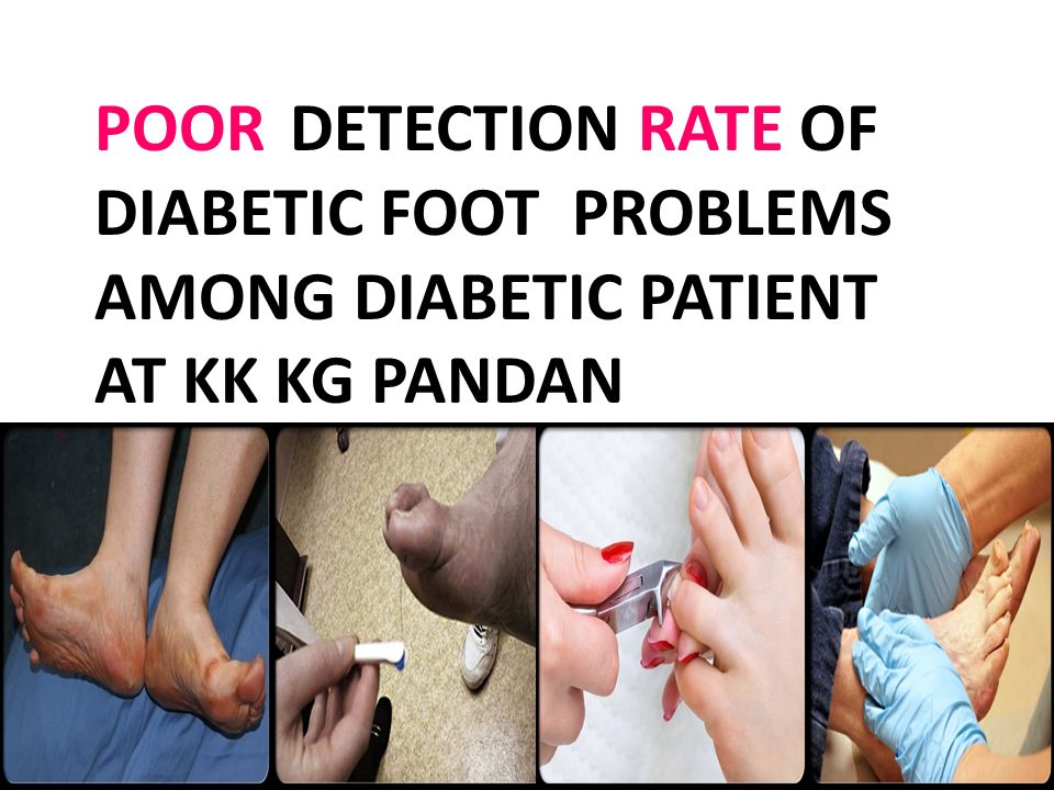 POOR DETECTION RATE OF DIABETIC FOOT PROBLEMS AMONG DIABETIC PATIENT AT KK KG PANDAN