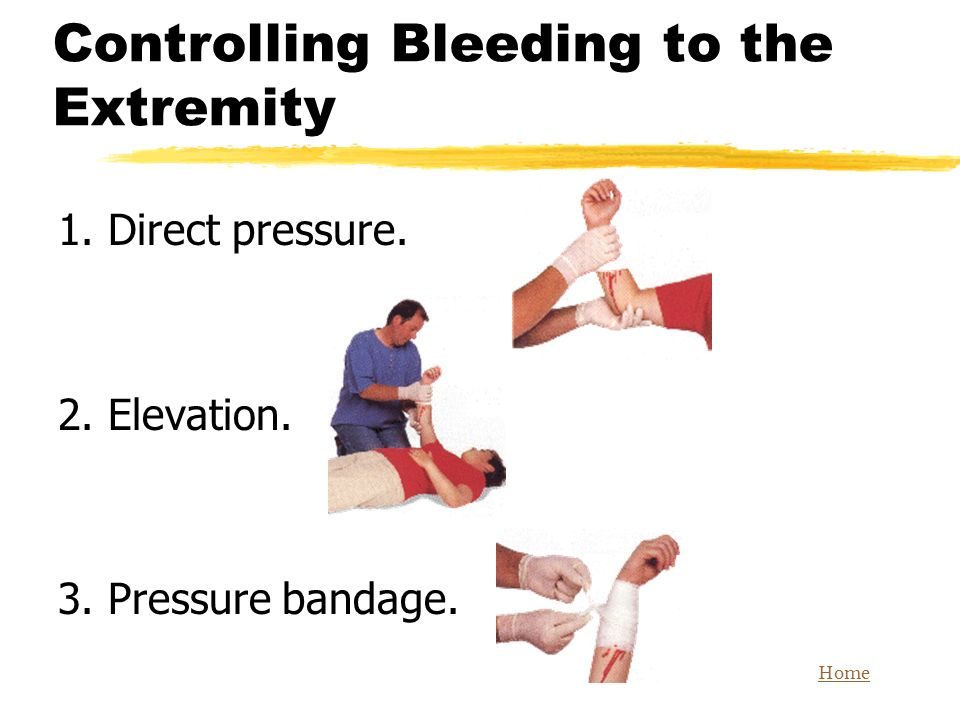 Controlling Bleeding to the Extremity