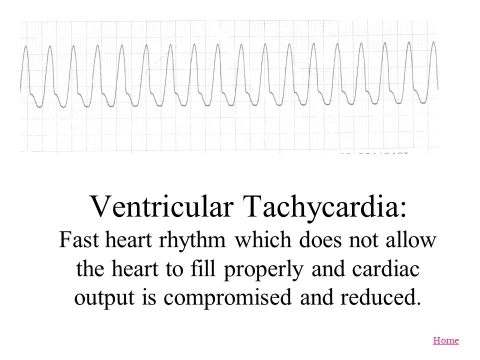 Ventricular Tachycardia: Fast heart rhythm which does not allow the heart to fill properly and cardiac output is compromised and reduced.