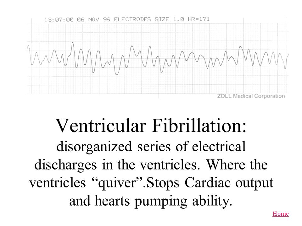 Ventricular Fibrillation: disorganized series of electrical discharges in the ventricles.