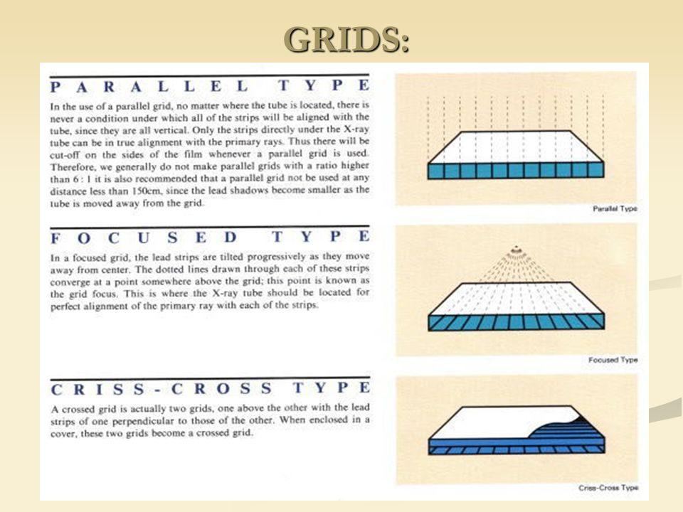 GRIDS: