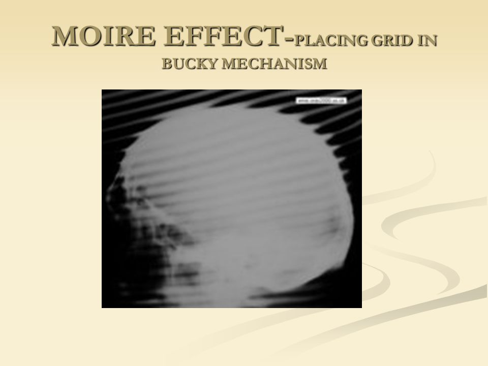 MOIRE EFFECT-PLACING GRID IN BUCKY MECHANISM