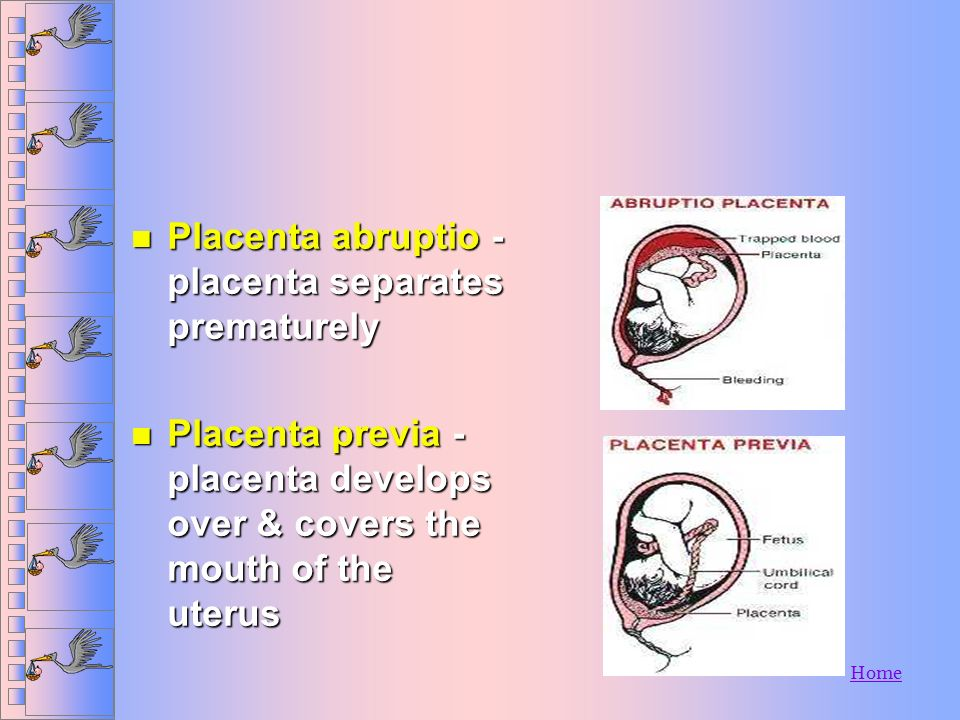 Placenta abruptio - placenta separates prematurely