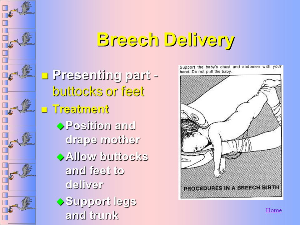 Breech Delivery Presenting part - buttocks or feet Treatment