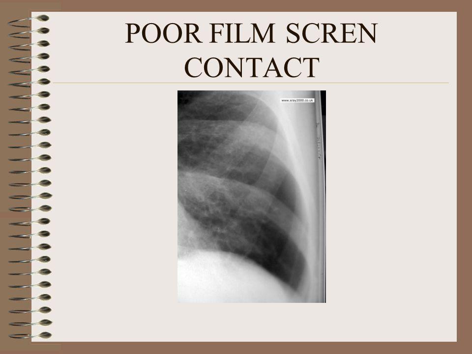 POOR FILM SCREN CONTACT