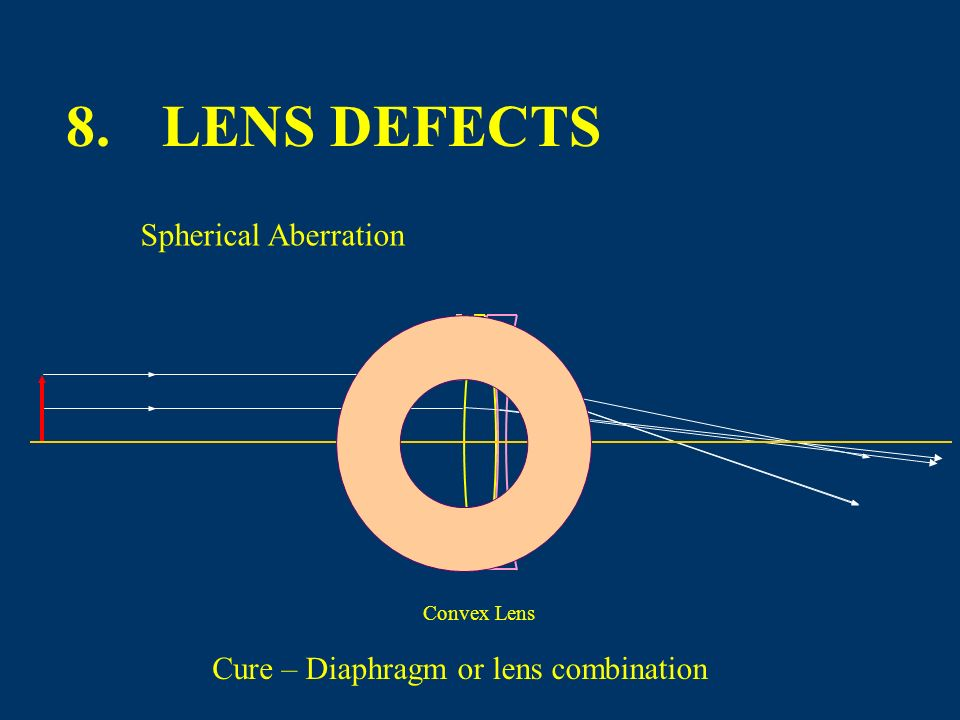 8. LENS DEFECTS Spherical Aberration Cure – Diaphragm