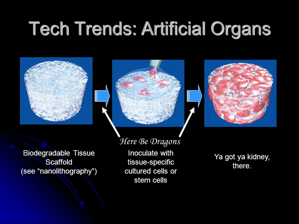 Tech Trends: Artificial Organs