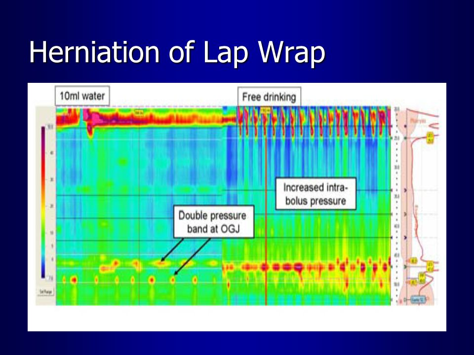 Herniation of Lap Wrap