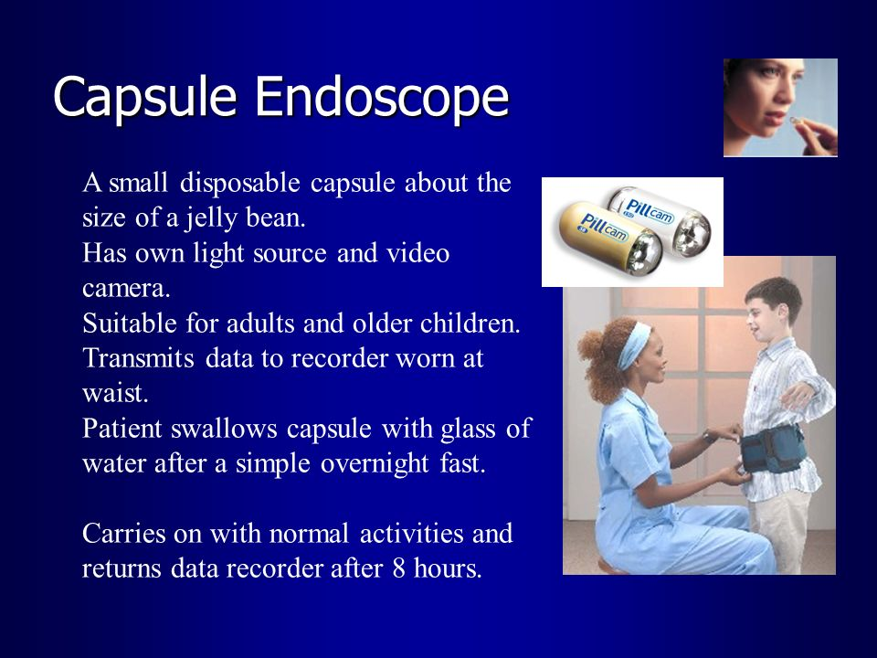 Capsule EndoscopeA small disposable capsule about the size of a jelly bean. Has own light source and video camera.