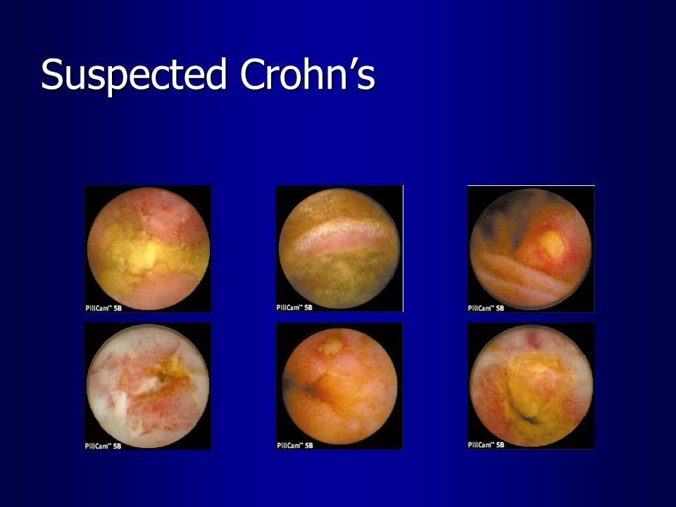 Suspected Crohn's