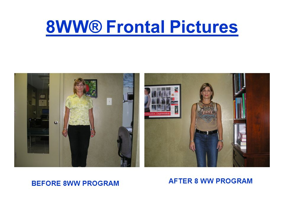8WW® Frontal Pictures AFTER 8 WW PROGRAM BEFORE 8WW PROGRAM