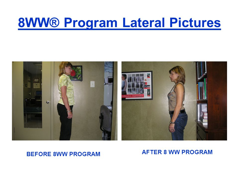 8WW® Program Lateral Pictures