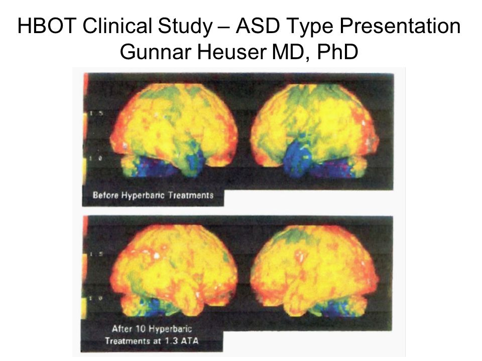 HBOT Clinical Study – ASD Type Presentation Gunnar Heuser MD, PhD