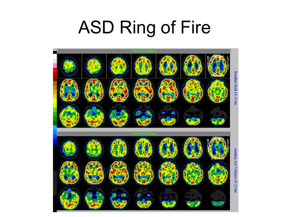 ASD Ring of Fire