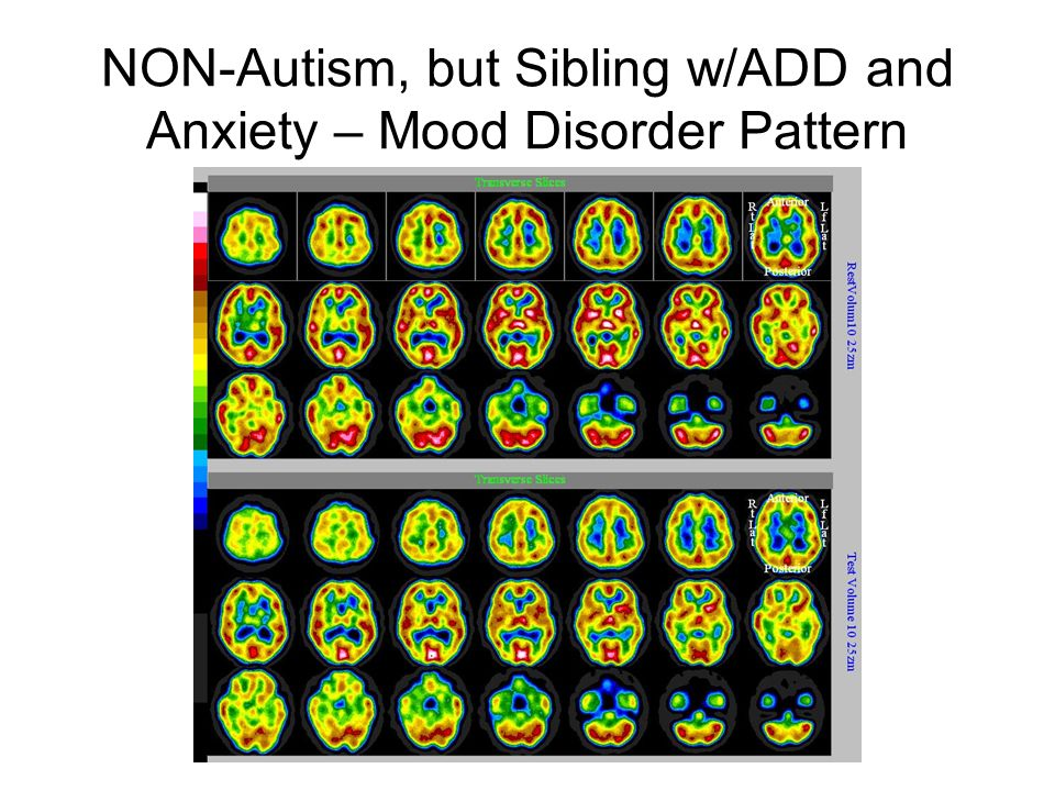 NON-Autism, but Sibling w/ADD and Anxiety – Mood Disorder Pattern