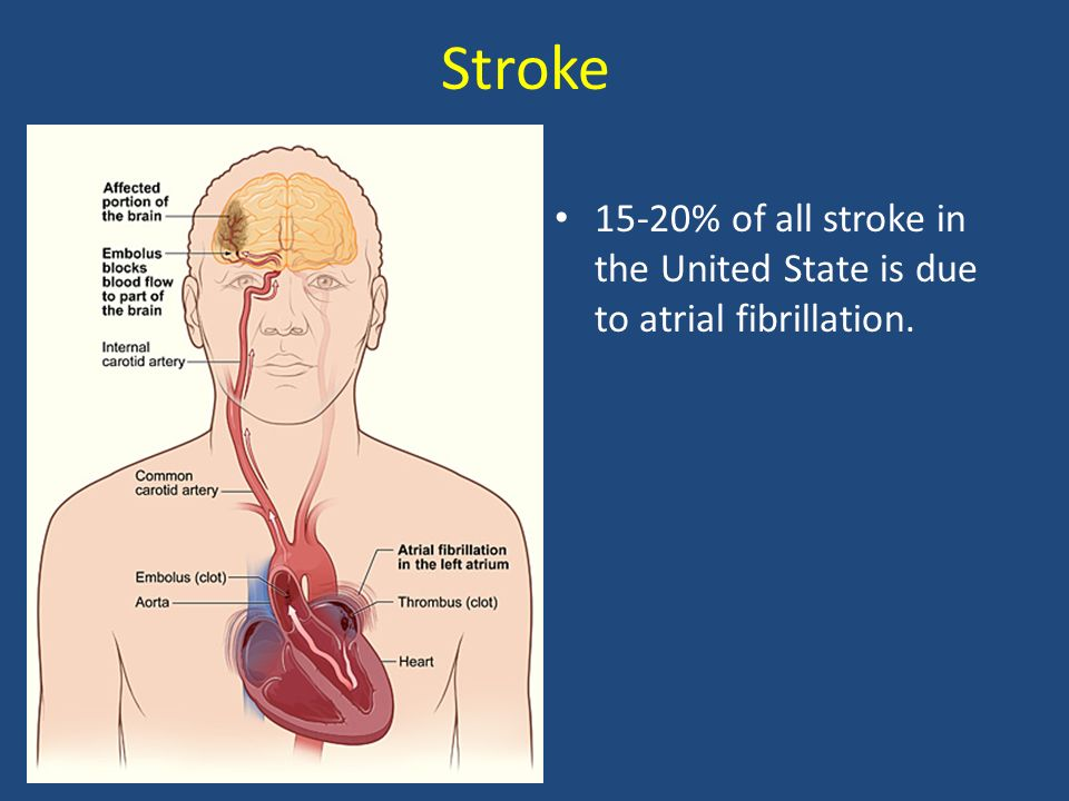Stroke 15-20% of all stroke in the United State is due to atrial fibrillation.