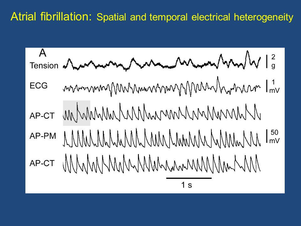 Atrial fibrillation: Spatial and temporal electrical heterogeneity