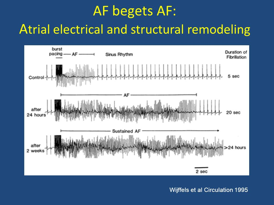 Levitra Atrial Fibrillation