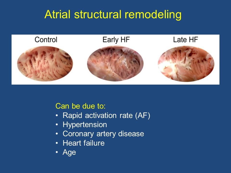 Atrial structural remodeling