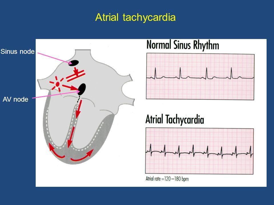 Atrial tachycardia Sinus node AV node