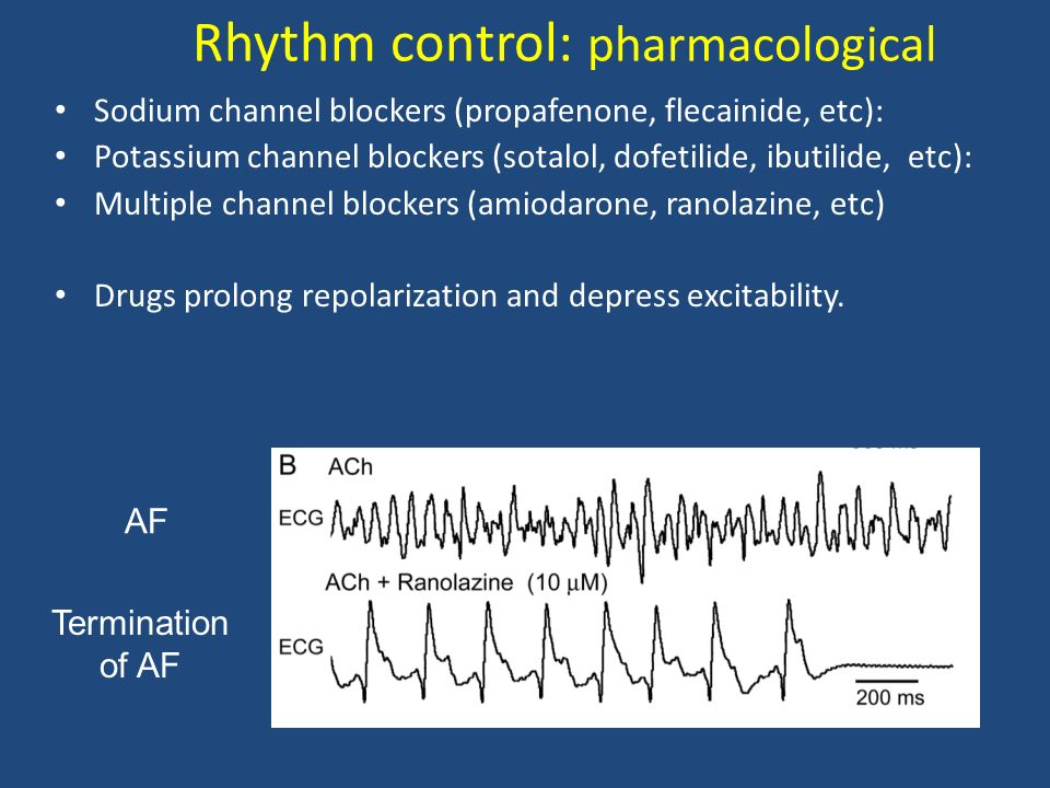 Rhythm control: pharmacological