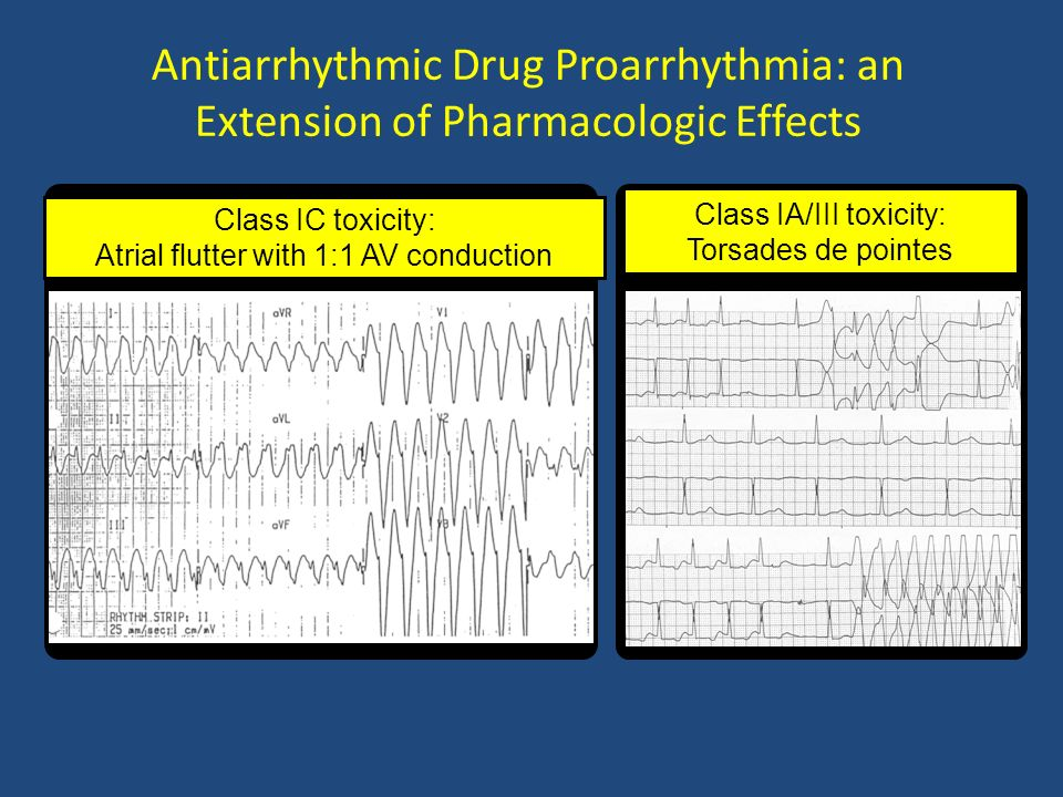 Antiarrhythmic Drug Proarrhythmia: an Extension of Pharmacologic Effects