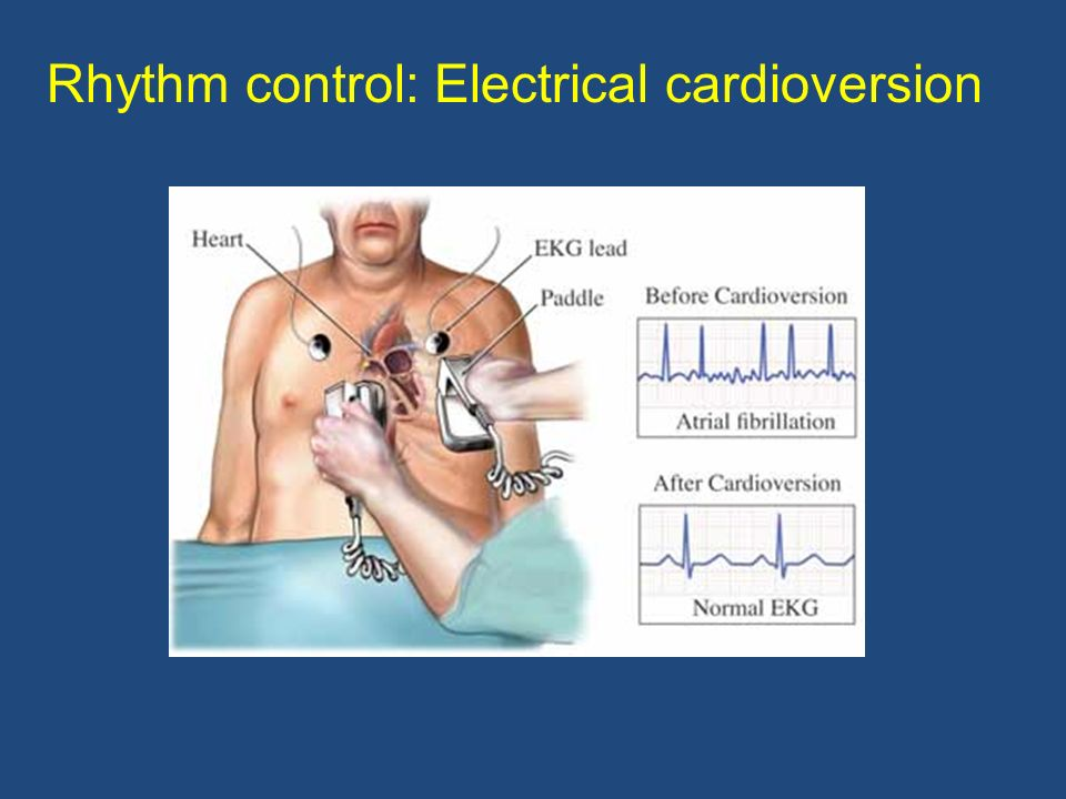 Rhythm control: Electrical cardioversion
