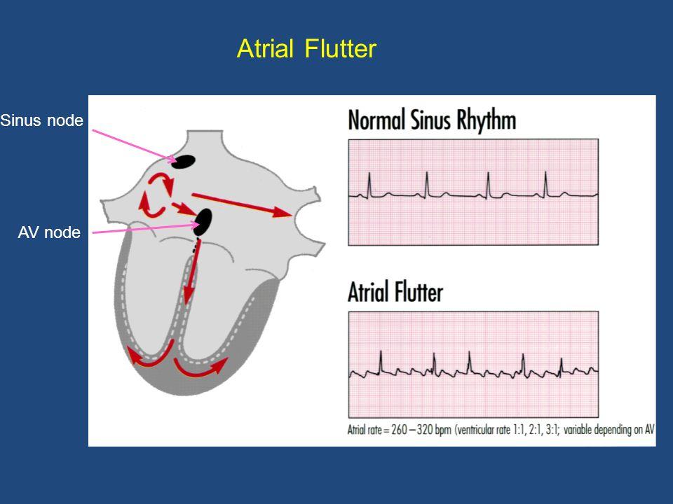 Atrial Flutter Sinus node AV node