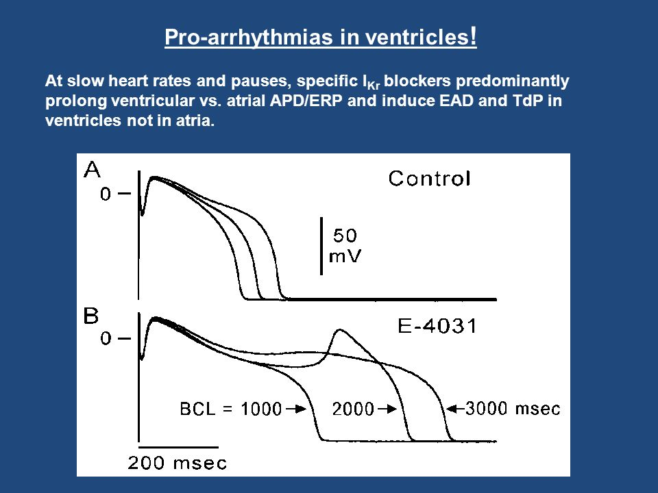 Pro-arrhythmias in ventricles!