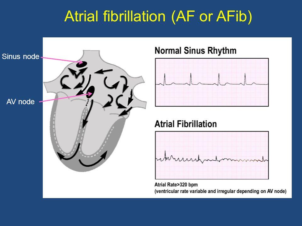 Atrial fibrillation (AF or AFib)