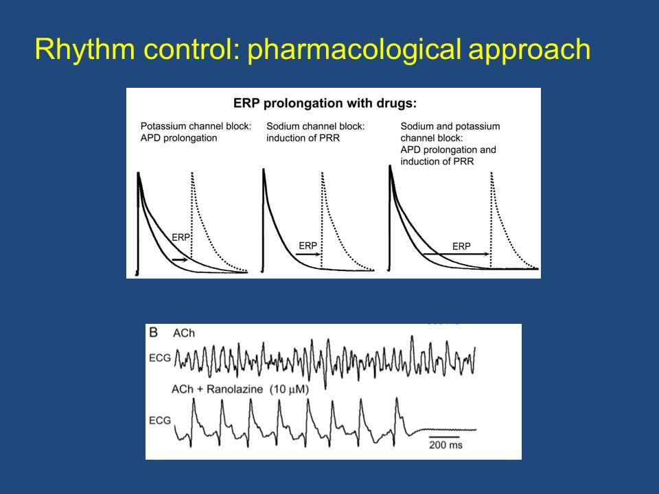 Rhythm control: pharmacological approach