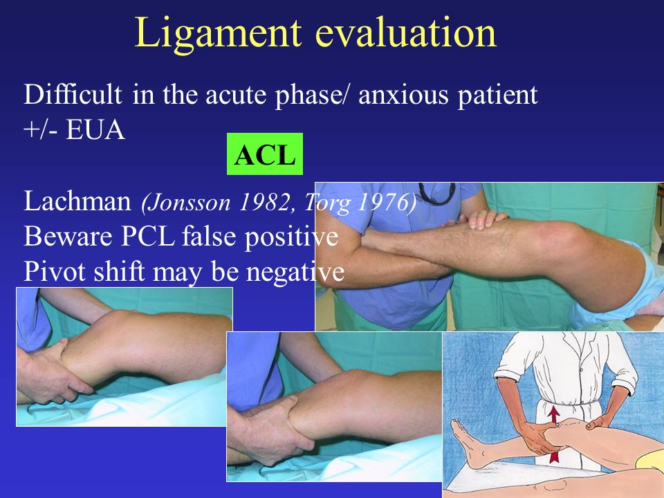 Ligament evaluation Difficult in the acute phase/ anxious patient