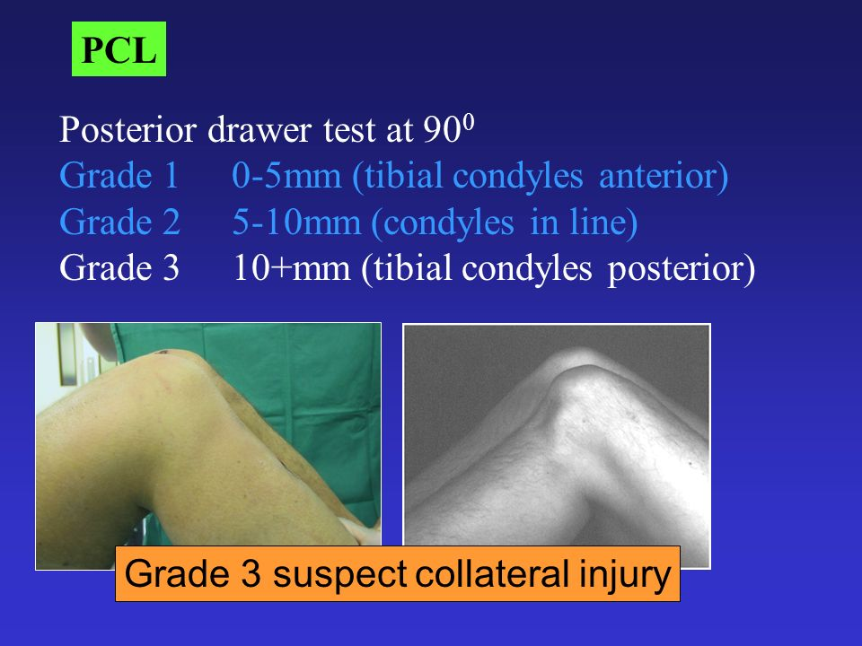 PCL Posterior drawer test at 900. Grade 1 0-5mm (tibial condyles anterior) Grade mm (condyles in line)