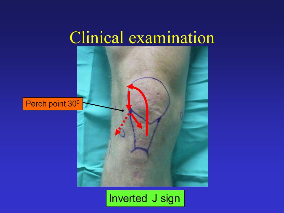 Clinical examination Perch point 300 Inverted J sign