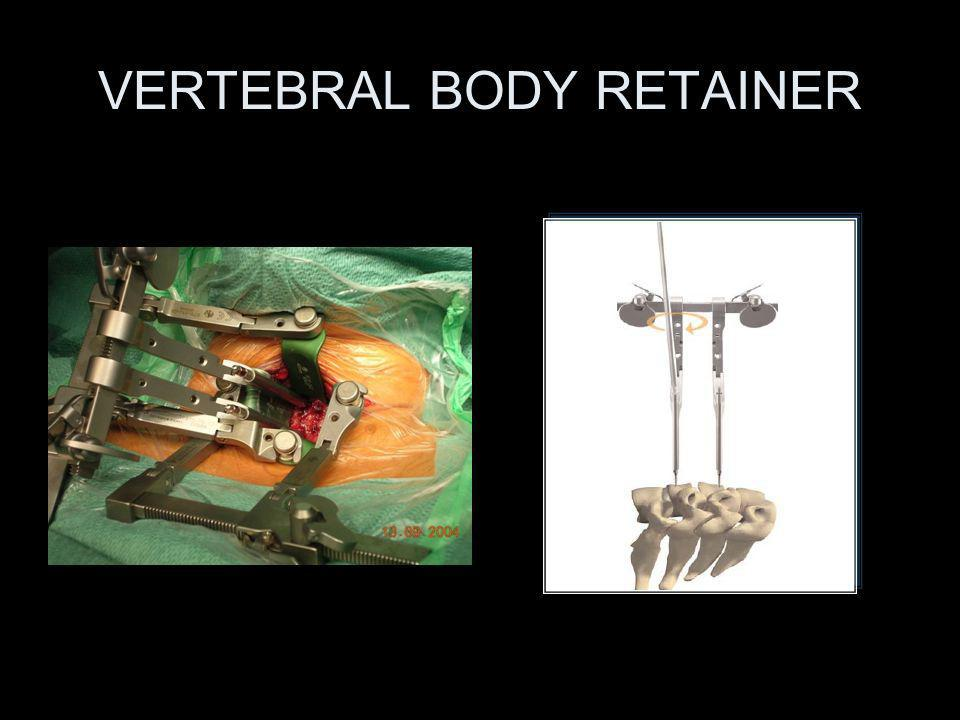 VERTEBRAL BODY RETAINER
