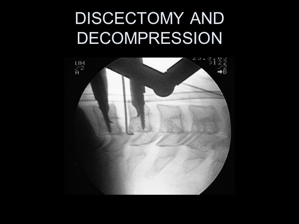 DISCECTOMY AND DECOMPRESSION