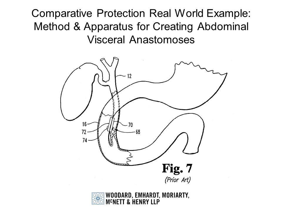 Comparative Protection Real World Example: Method & Apparatus for Creating Abdominal Visceral Anastomoses