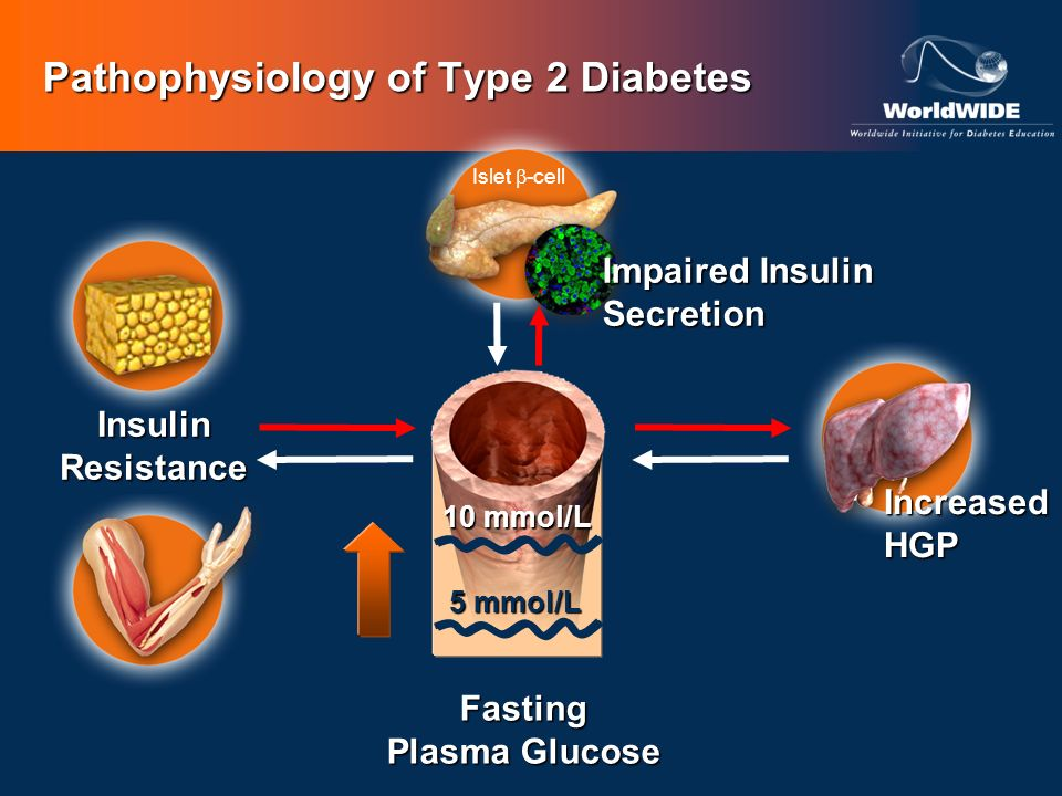 Pathophysiology of Type 2 Diabetes