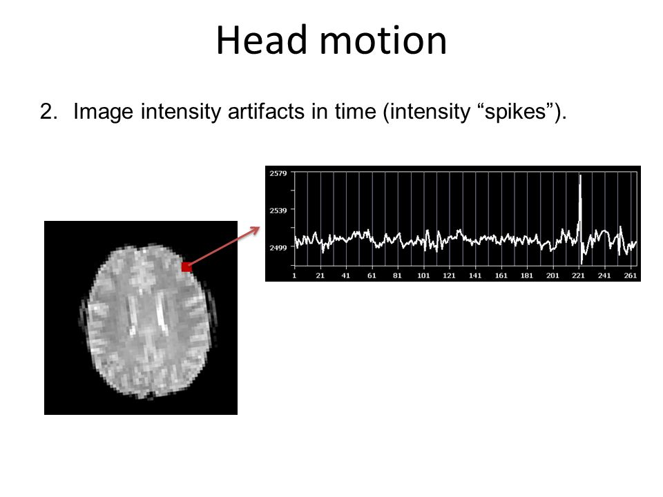 Head motion Image intensity artifacts in time (intensity spikes ).
