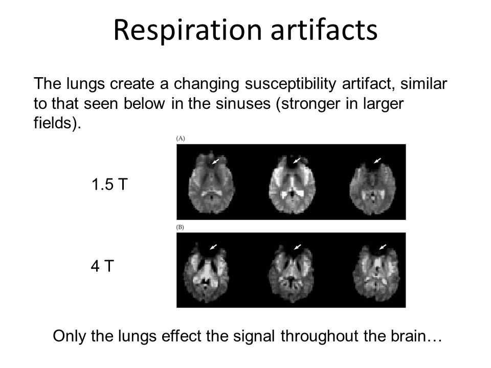 Respiration artifacts