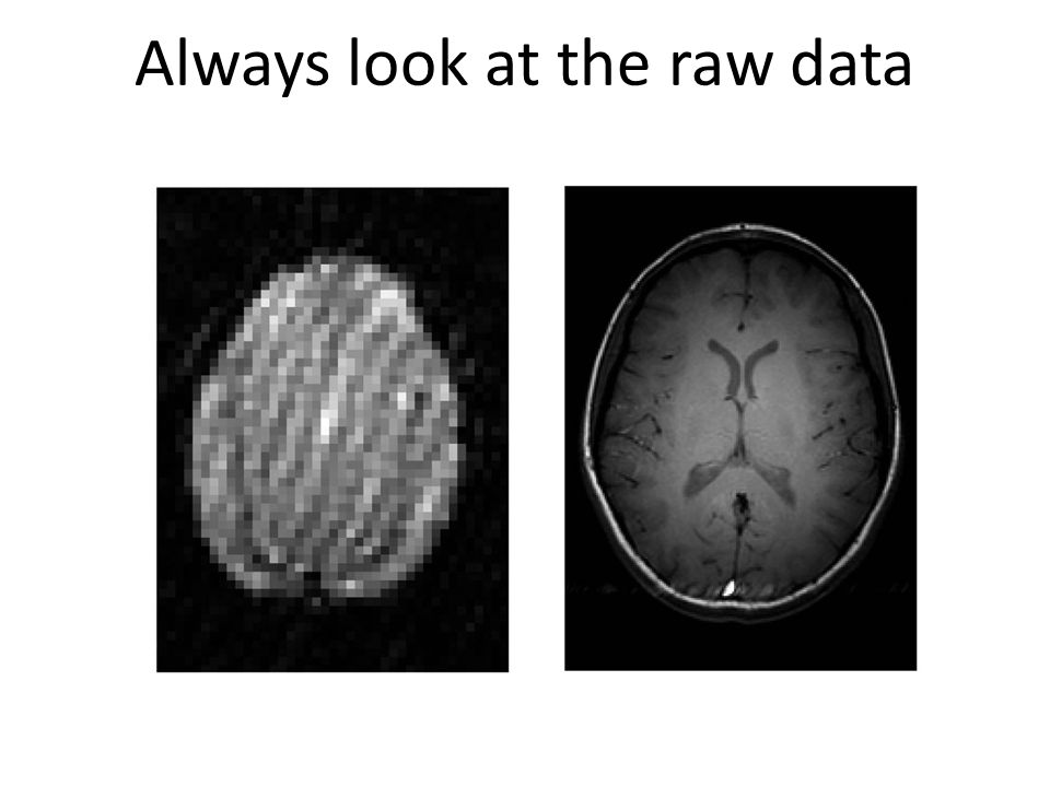 Always look at the raw data