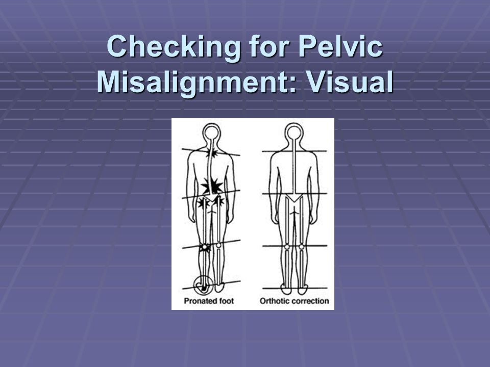 Checking for Pelvic Misalignment: Visual