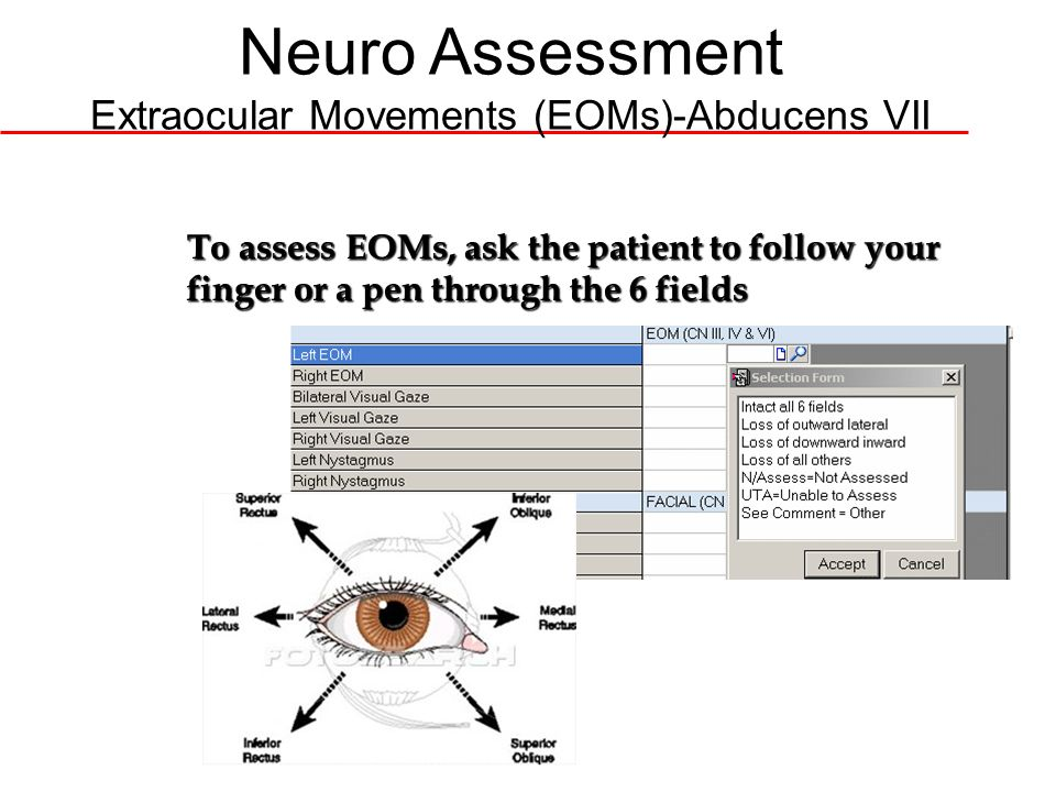Neuro Assessment Extraocular Movements (EOMs)-Abducens VII
