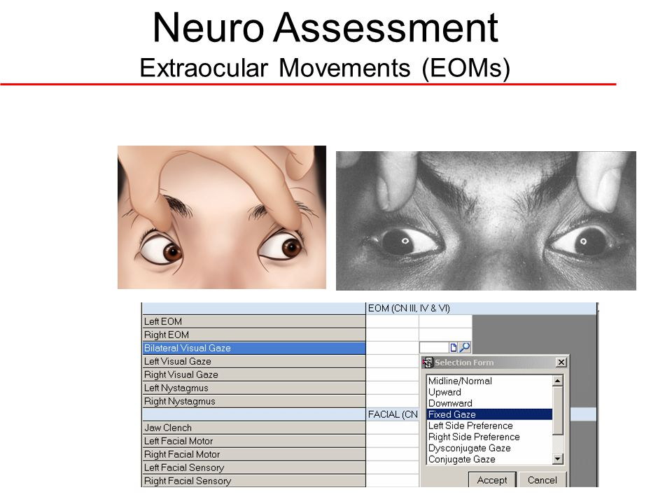 Neuro Assessment Extraocular Movements (EOMs)