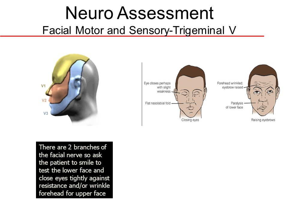 Neuro Assessment Facial Motor and Sensory-Trigeminal V